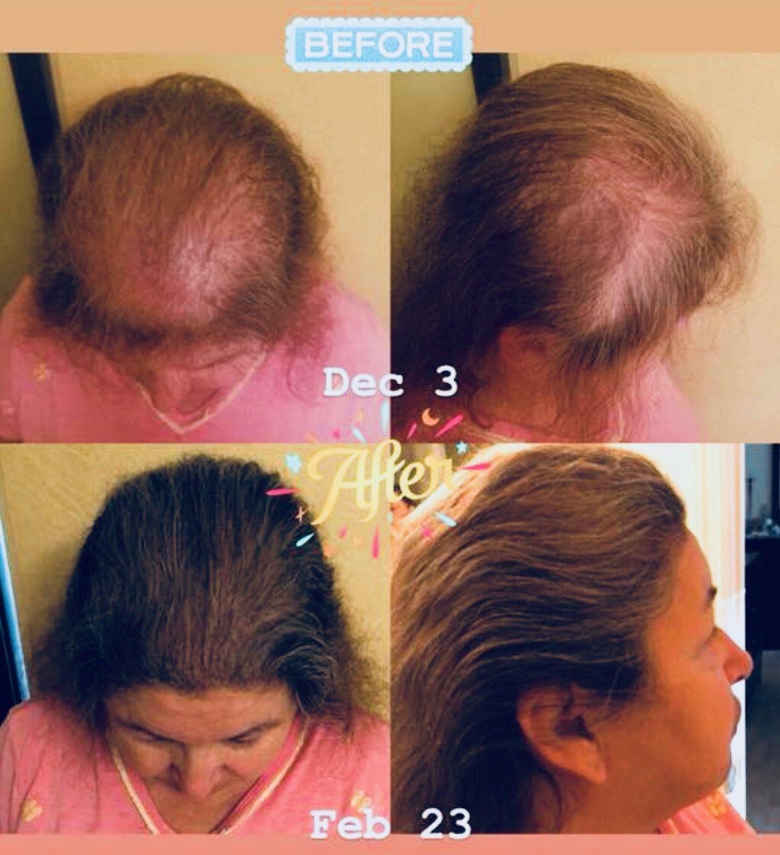 Let It Grow Rejuveniqe Oil Hair Fall Solution Hair Growth For Men Monat Hair