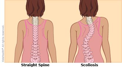 25++ Right vs left scoliosis inspirations