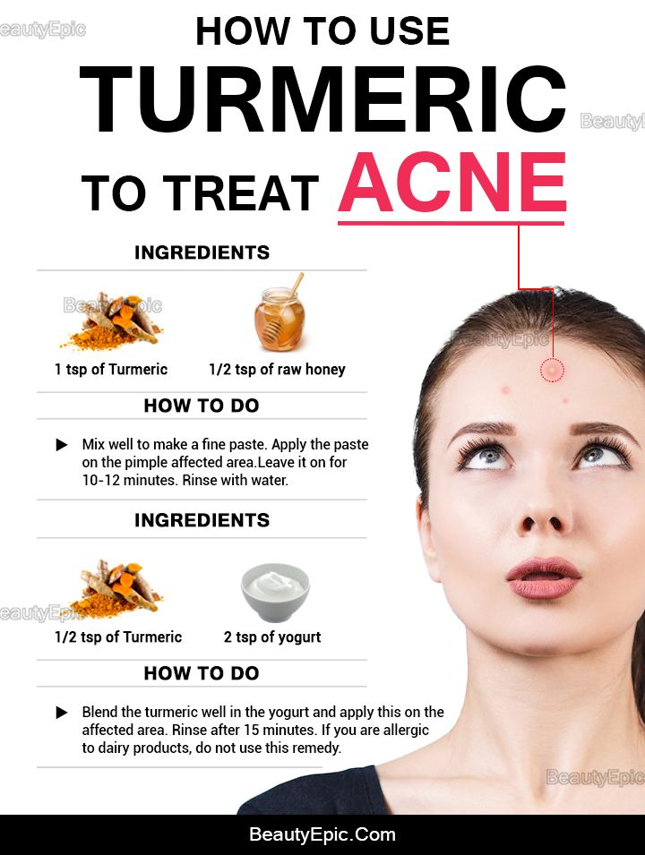 How To Use Turmeric For Acne How To Treat Acne Skin Care Natural Acne