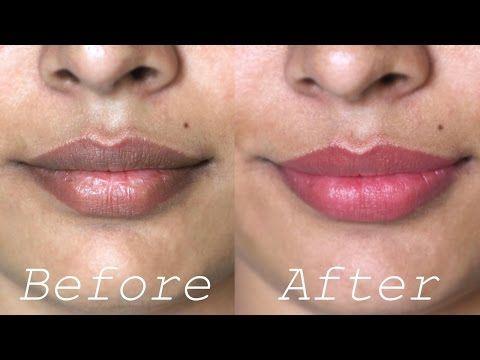 717fb70b78afed94eb401c8ff3772320 - How To Get Rid Of Dark Lips From Smoking Weed