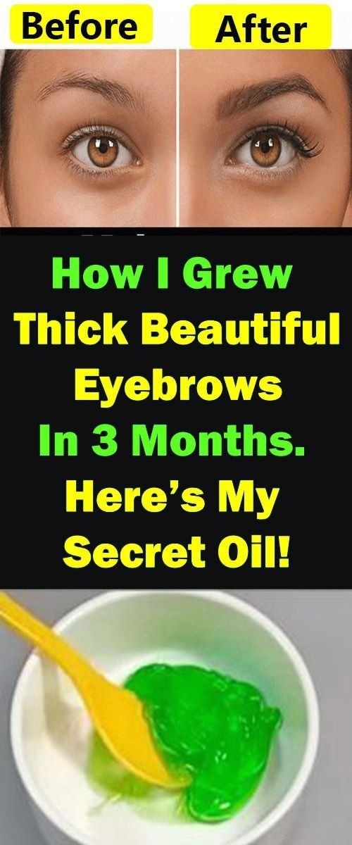 How I Grew Thick Beautiful Eyebrows In 3 Months? Here's My ...
