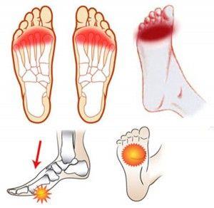 Los en dolor pies la puede causar tiroides