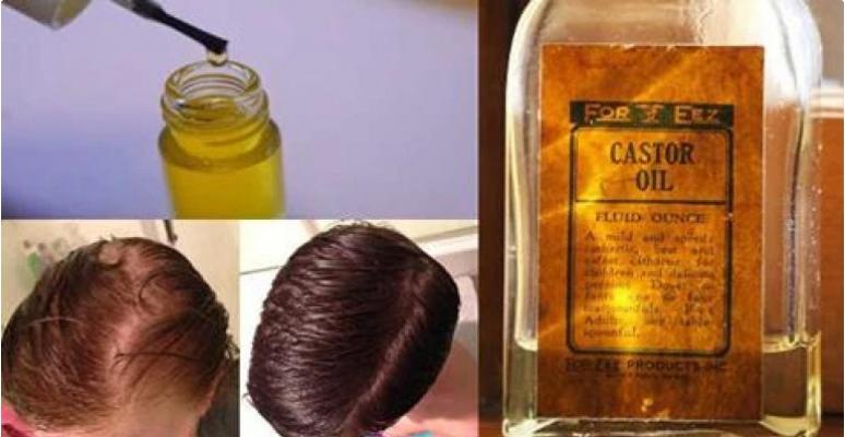 Este óleo é rico em ômega 9 de ácidos graxos que nutrem o cabelo e seus folículos. O óleo de mamona é muito eficiente para o fortalecimento e