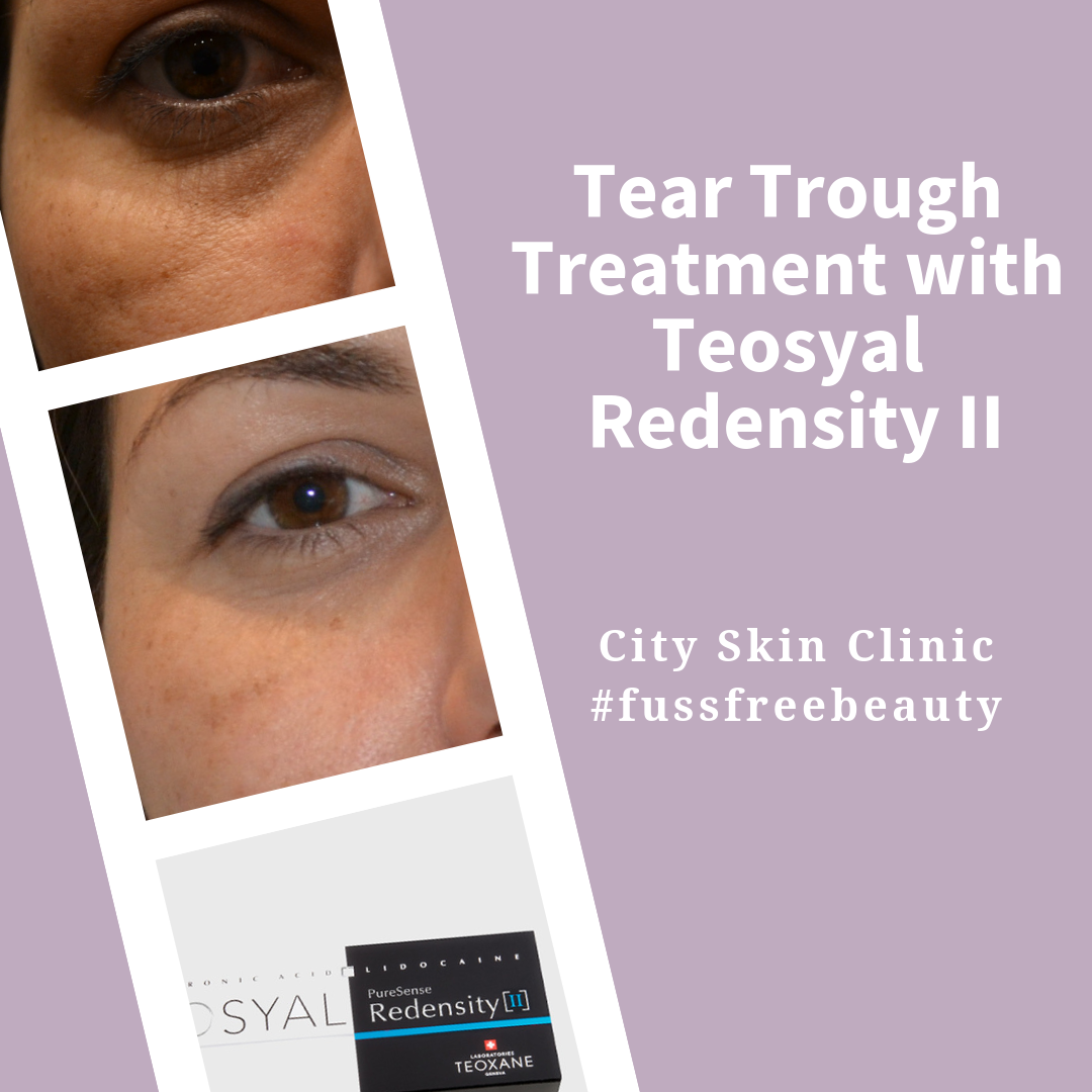 Learn about how use Teosyal redensity II to treat tear