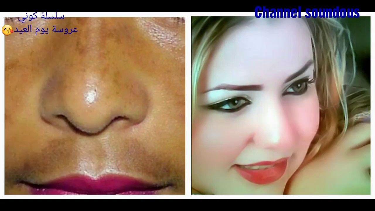 علاج الكلف والبقع الداكنة والنمش في أسبوع Youtube Best Skin Care Regimen Skin Care Regimen Good Skin