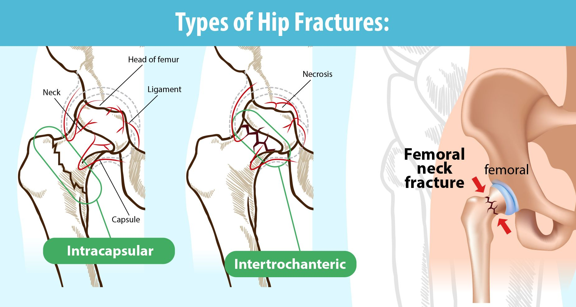 types of fractures in human body broken hip types causes and symptoms kindly care [ 1852 x 990 Pixel ]