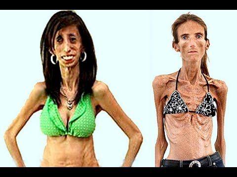 Skinniest girl on earth