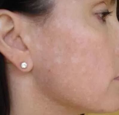 White patches on face: Causes, Treatment and Remedies ...