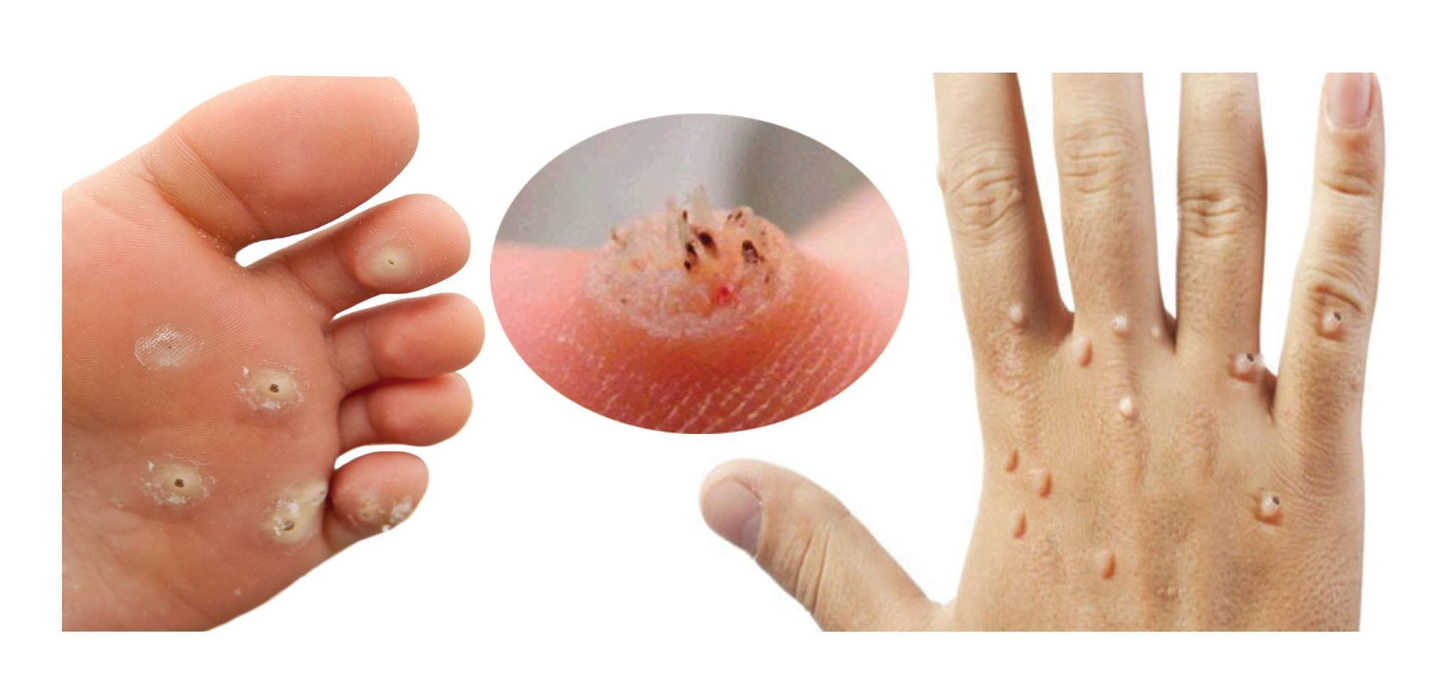 Why do warts appear