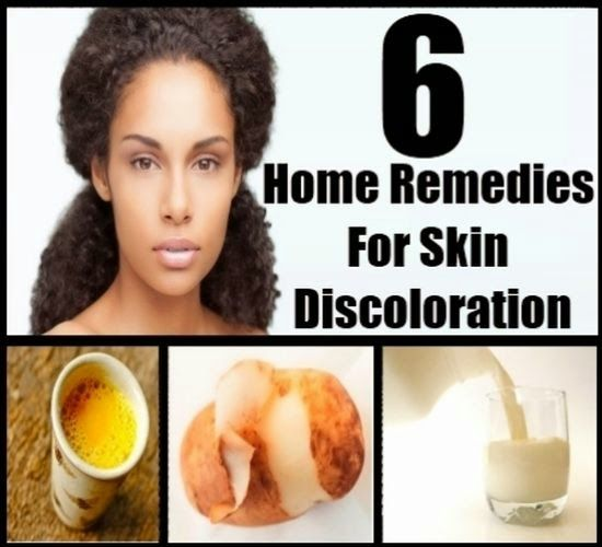 Home Remedies For Skin Discoloration   Home remedies for ...