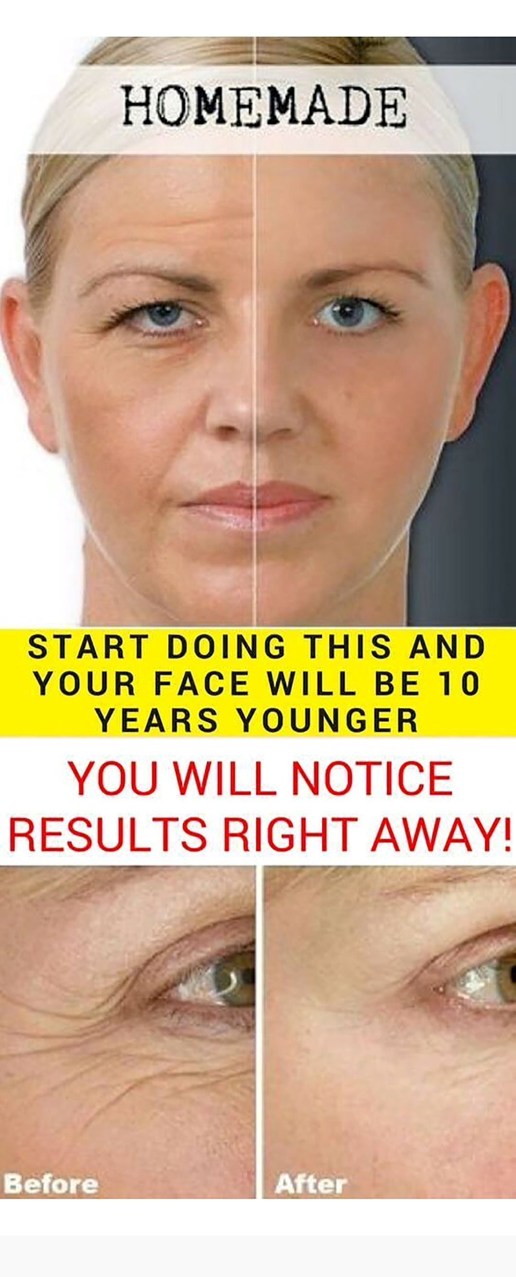 Photo of Start Doing This And Your Face Will Be 10 Years Younger! (You Will Notice Results Right Away) – Masque