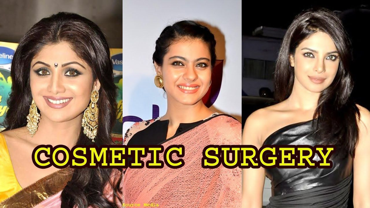 12 bollywood actress who went for cosmetic s… | 12 bollywood actress
