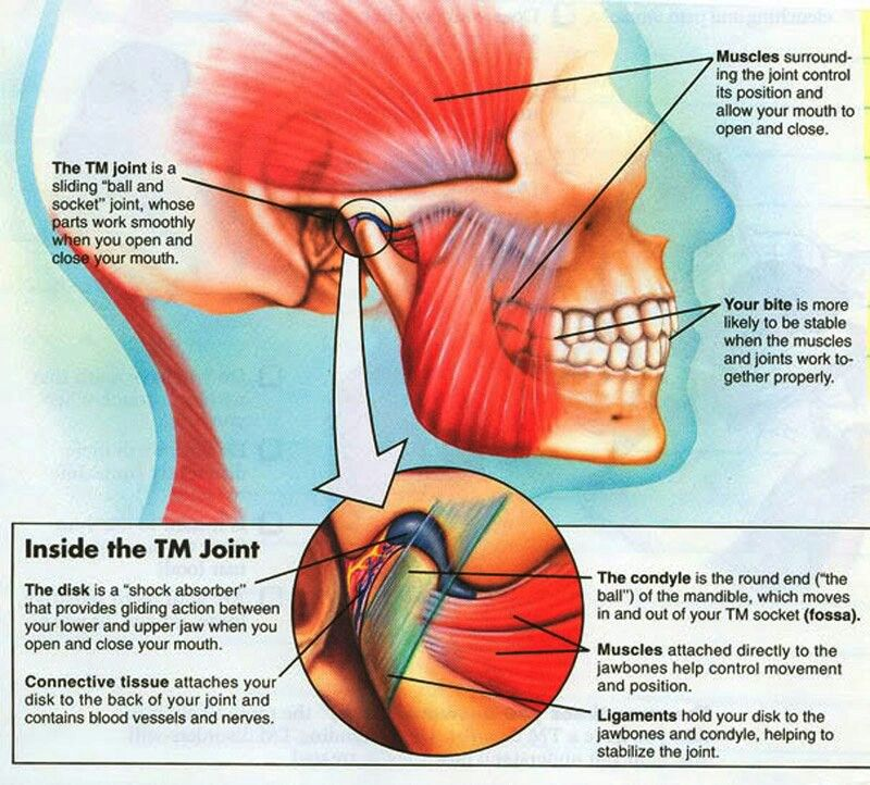 Understanding TMJ | Massage Therapy | Pinterest | Fibromyalgia ...