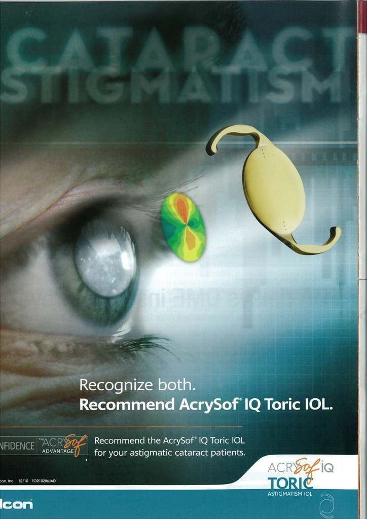 AcrySof IQ Toric IOL: Recognize both. Recommend AcrySof IQ Toric IOL. Ophthalmology Times.