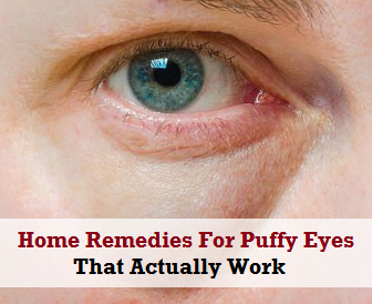 Home Remedies For Puffy Eyes That Actually Work
