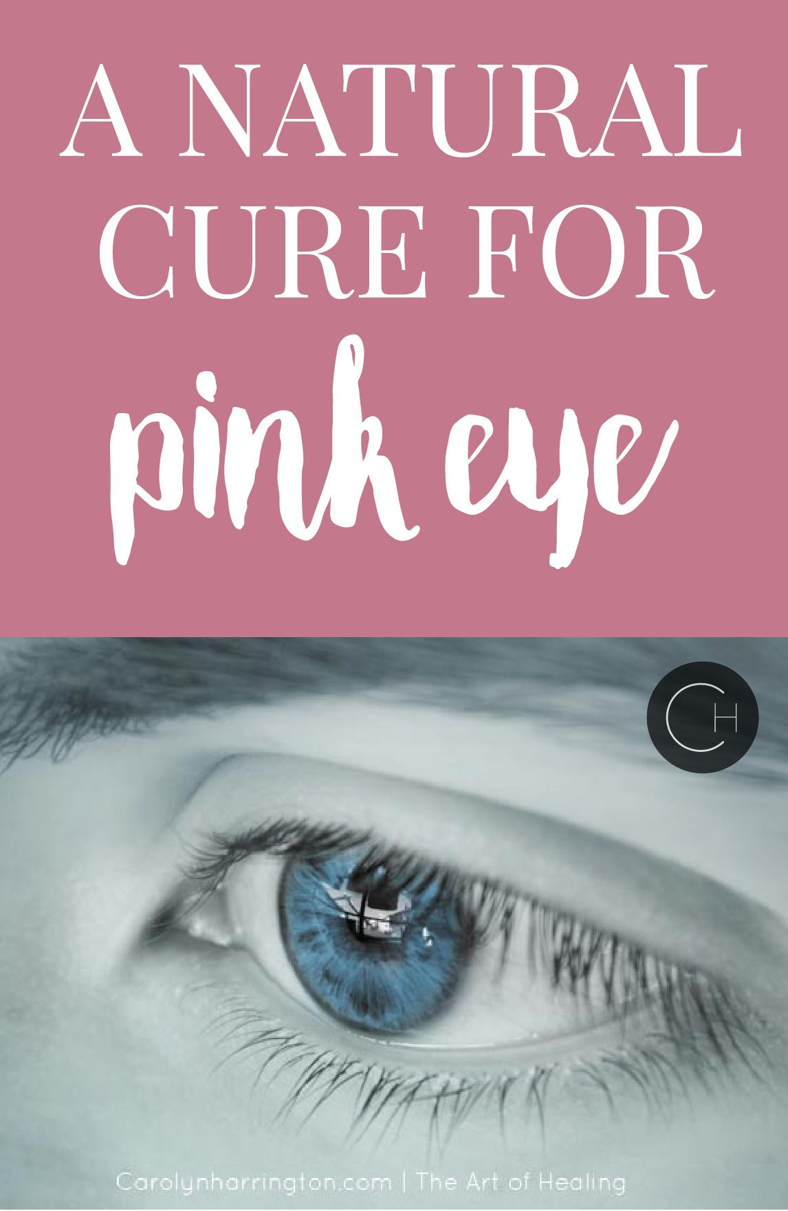 This at home remedy is an easy DIY when your kids have pink eye. It's a natural way to get rid of pink eye without drugs or medication.