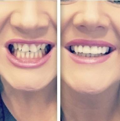 Top and Bottom 2 Pcs Suit Denture Instant Smile Comfort