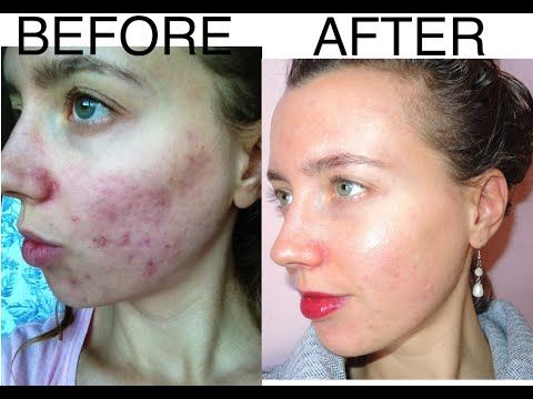Before And After Raw Veganism Pictures Of My Skin Youtube Before