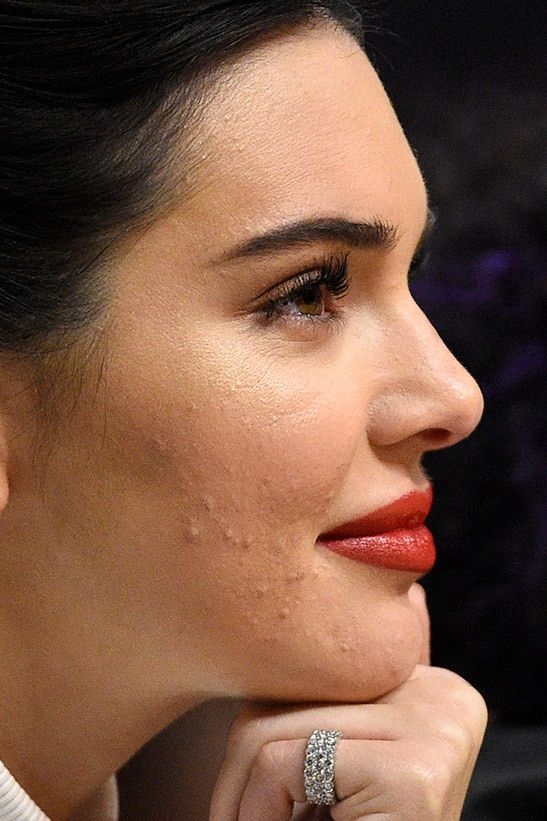 Kendall Kardashian Sin Maquillaje