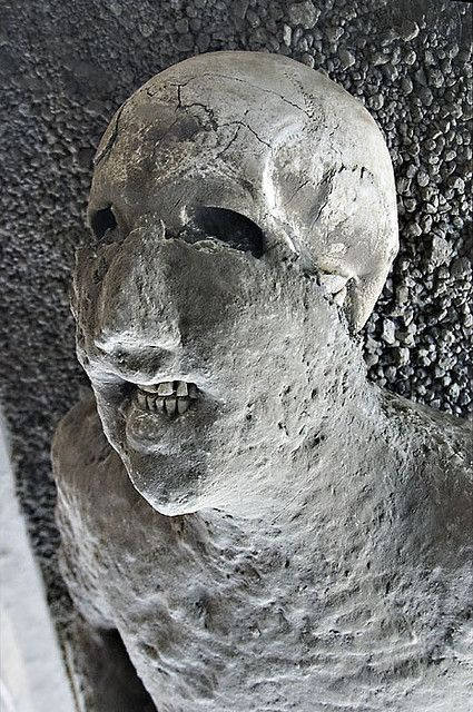 Pompeian Victim From The 79AD Eruption Of Mount Vesuvius Note How Teeth Still Remain In Place This Was Due To Volcanic Ash Which Layered