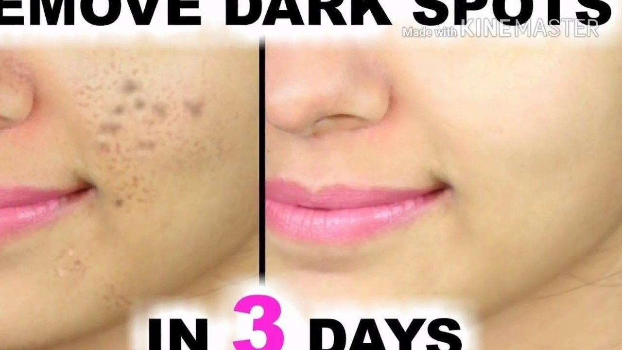 Remove Dark Spots In 3 Days Natural Remedies That Really Work Dark Spots On Face How To Remove Pimples Remove Dark Spots