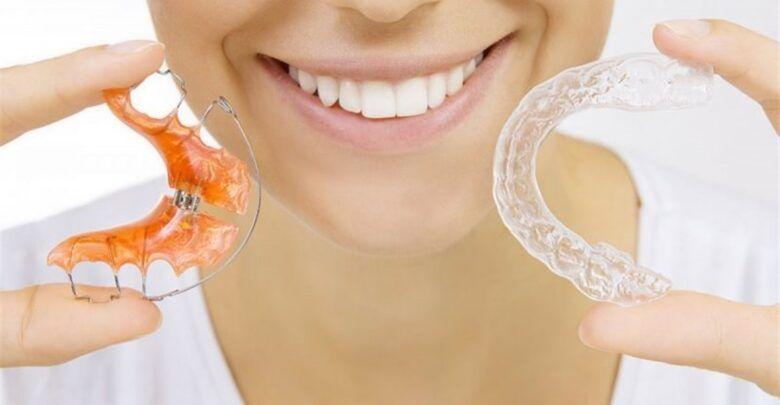 تركيب تقويم الاسنان وما بعد عمل التقويم Dental Braces Teeth Alignment Orthodontics