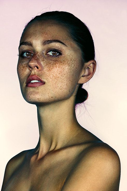 These Portraits Celebrate The Joy Of Having Freckles #face