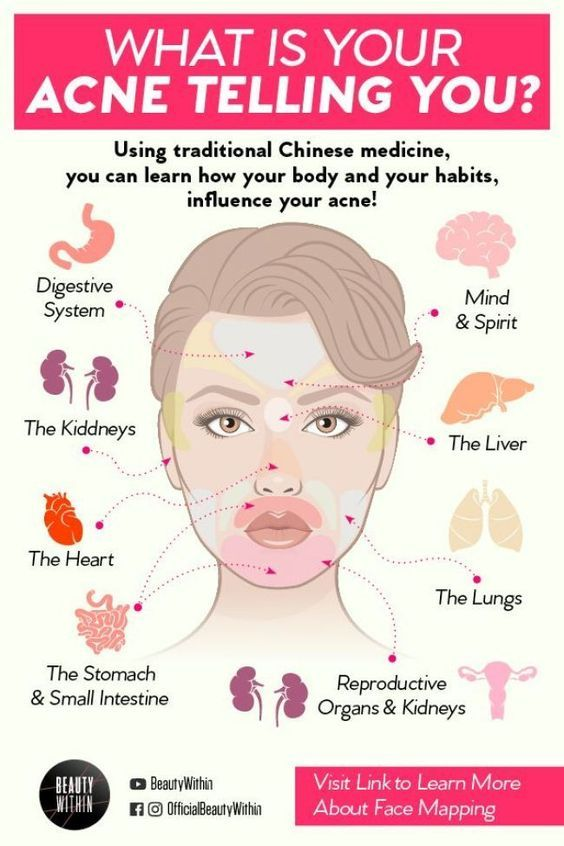 7 Most Susceptible Pimple Breakout Points And Why Beauty Skin Care Routine Skin Care Acne Acne Skin
