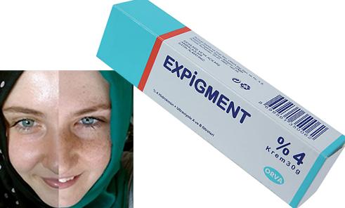Expigment Krem Ne İşe Yarar, Fiyatı Nedir, Kullanıcı Yorumları? #ciltbakımı