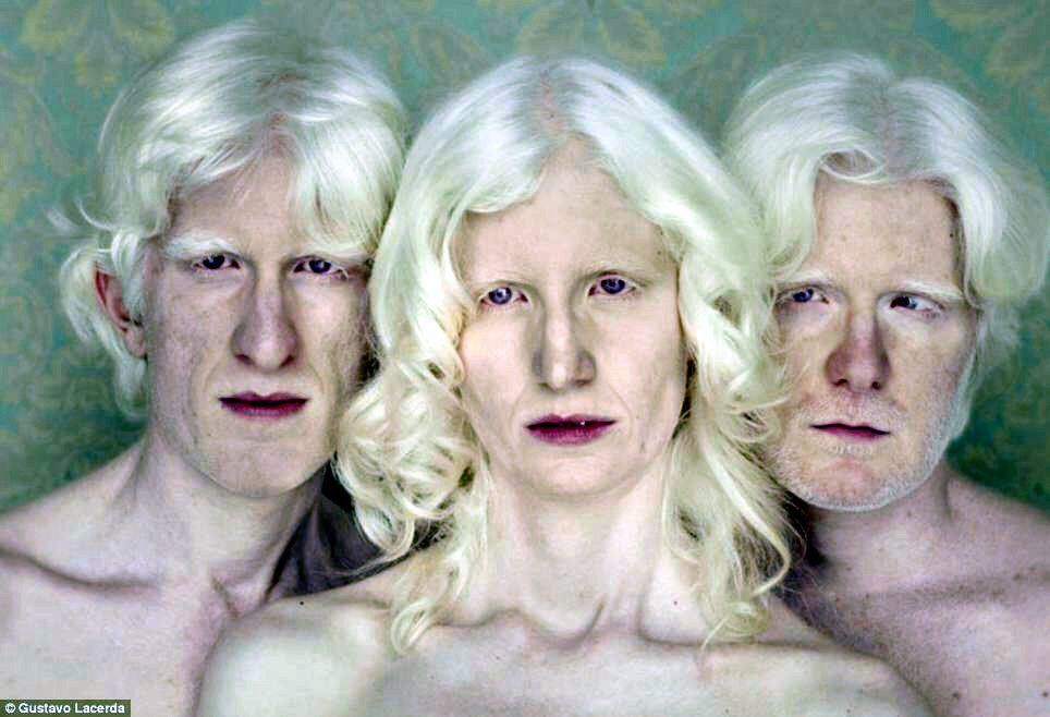 Albinos Albinism Albino Human Albino Model