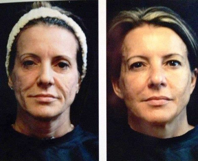 Seacret Recover before and after you could have results like this to contact me @ www.seacretdirect.com/cindyhowes
