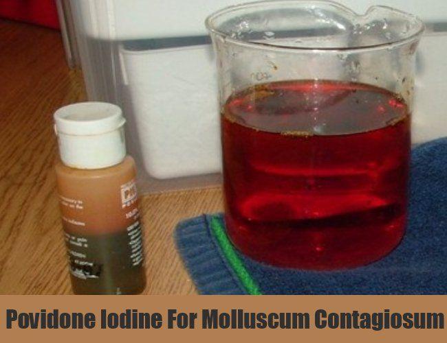 Povidone Iodine For Molluscum Contagiosum | Home remedies
