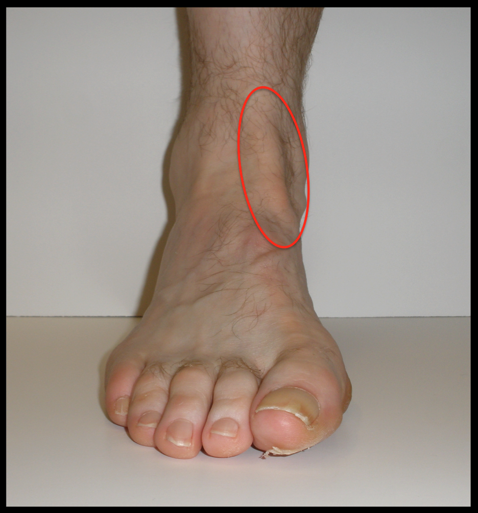 Location of Pain and Swelling in Anterior Tibial Tendonitis (Eww ...