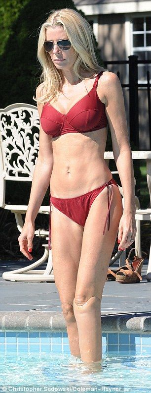 Carly Pope Accident