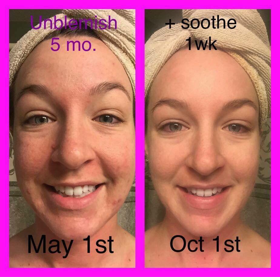 Unblemish Acne Treatment Adult Acne Hormonal Acne