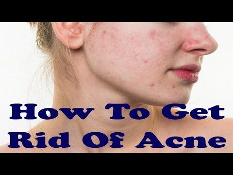 how to get a clear face using home remedies