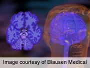 ADHD indicates a delay in brain development; Children Catch up