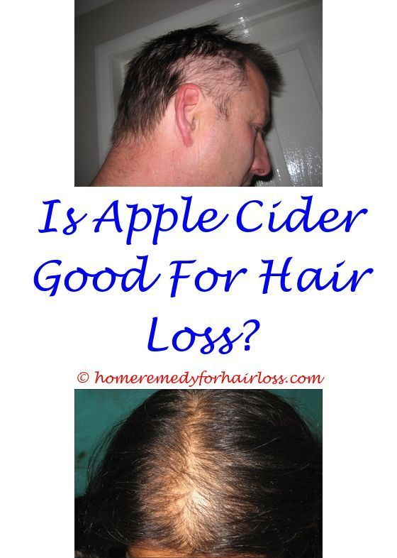 Hair Loss Which Tresemme Shampoo Is Good For Hair Loss Did Wen
