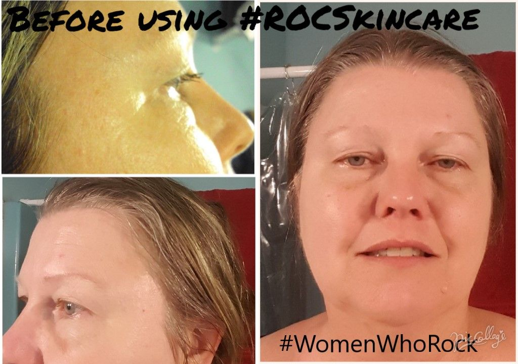 Sponsored Ad My Before Face Before Using Roc Retinol Correxion Eye Cream Roc Multi Correion 5 I Best Anti Aging Creams Anti Aging Skin Care Best Anti Aging