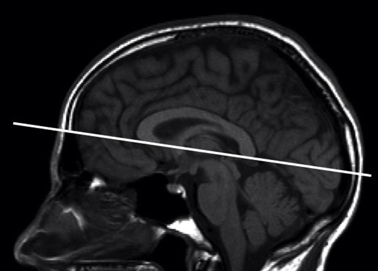 Orientation of axial oblique sequences for MR imaging of the brain ...