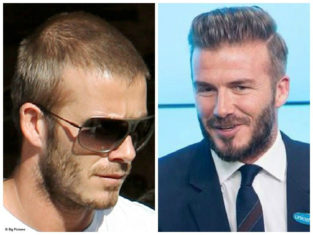 David Beckham Hair Plugs