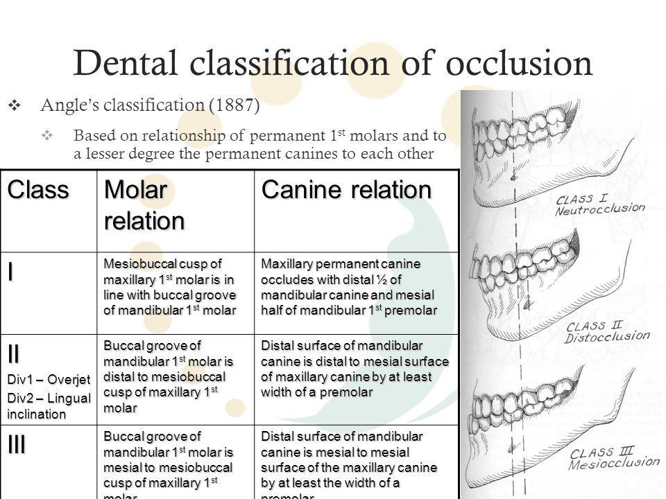 Dentalclassificationofocclusiong 960720 Pixels Dental Stuff