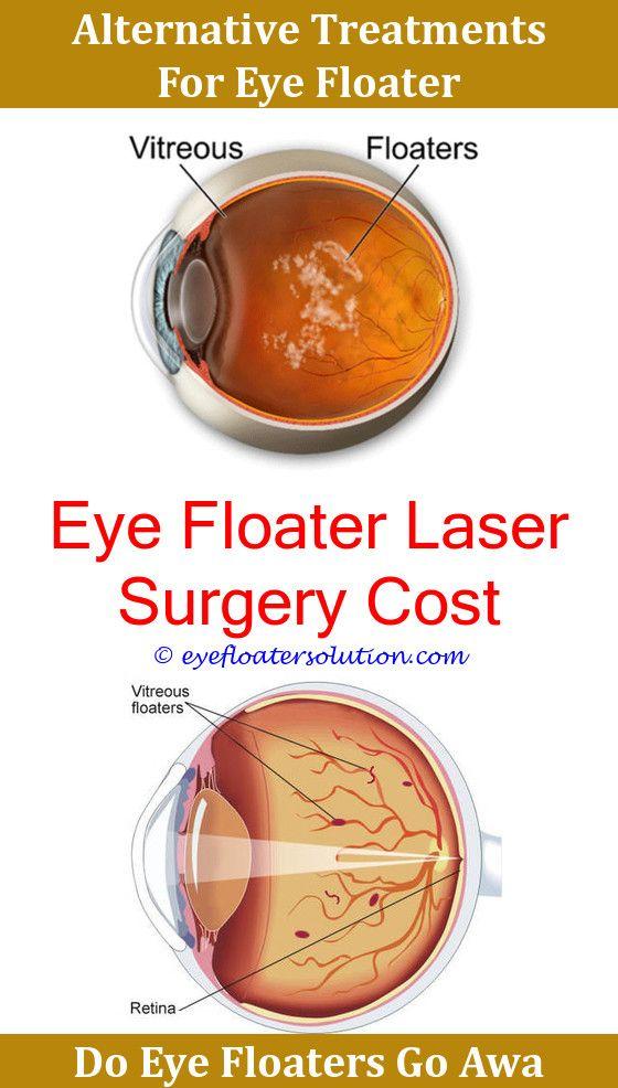 Eye Floaters Light Sensitivity Decoratingspecial Com