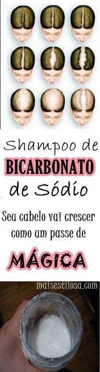 Shampoo Com Bicarbonato De Sodio Elimina A Caspa Combate A Queda