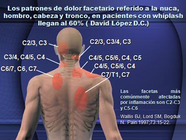 La curvatura de las vértebras en sheynom el departamento