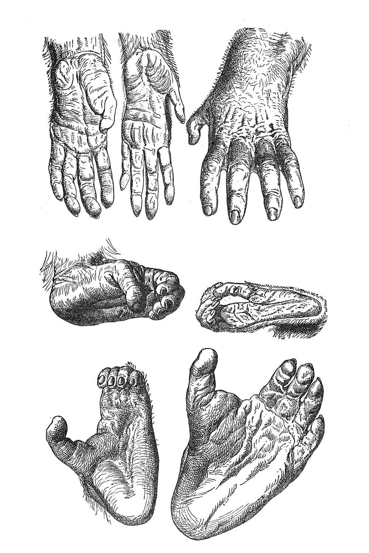 Hands and feet of a gorilla, a chimpanzee, and an orangutan ...