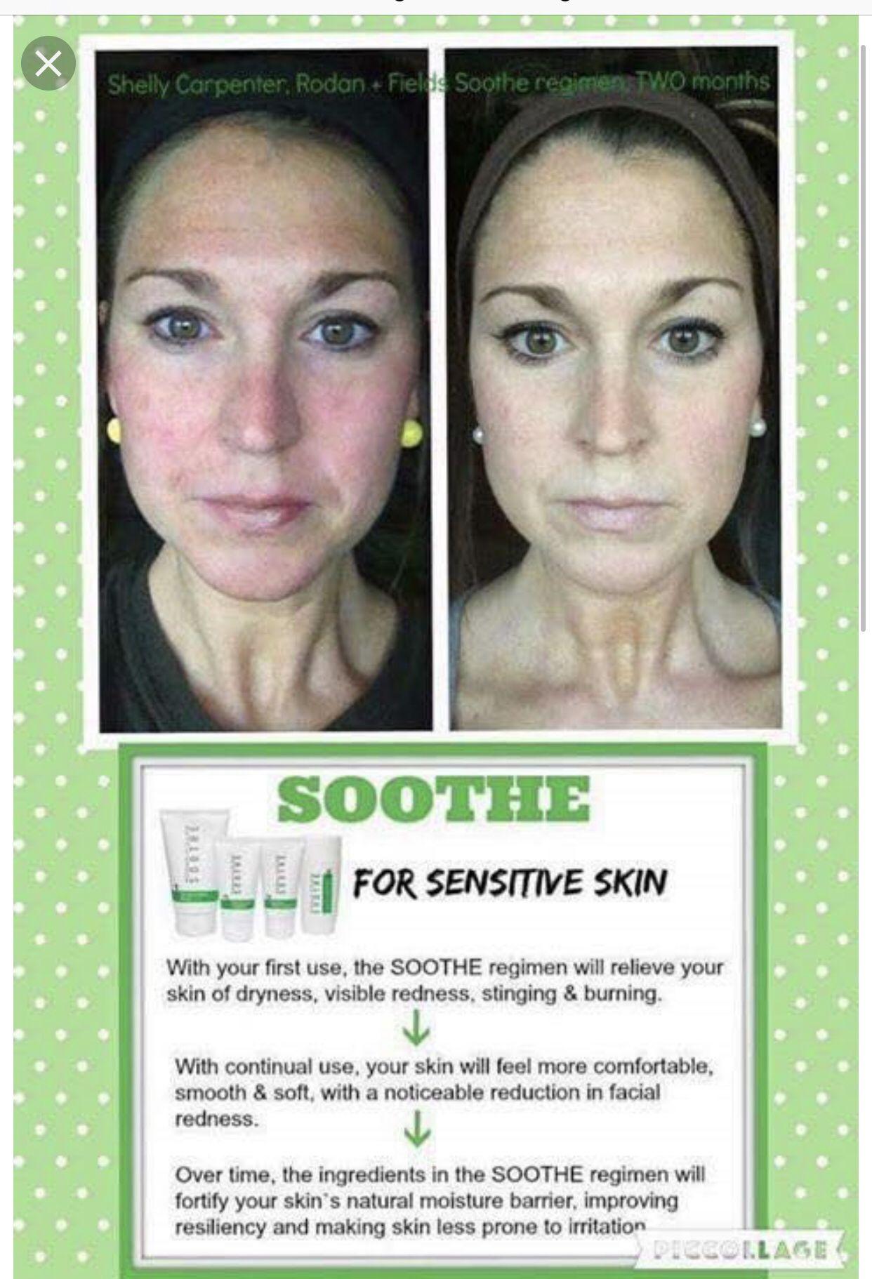 Sensitive Skin Rodan And Fields Soothe Sensitive Skin Care Sensitive Skin