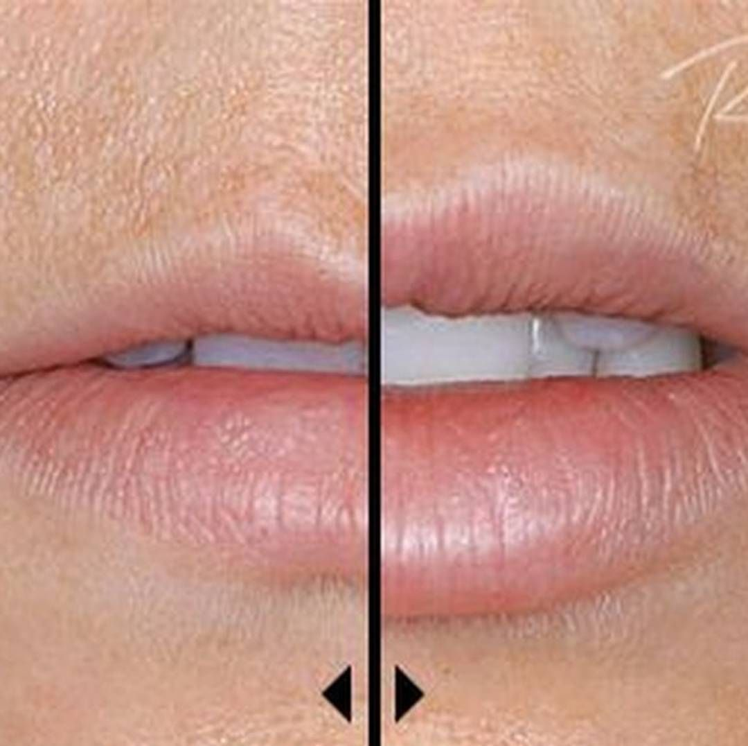 Excellent Care In A Kind Conservative: If Fuller Lips Are What You Crave Lip Injections May Be