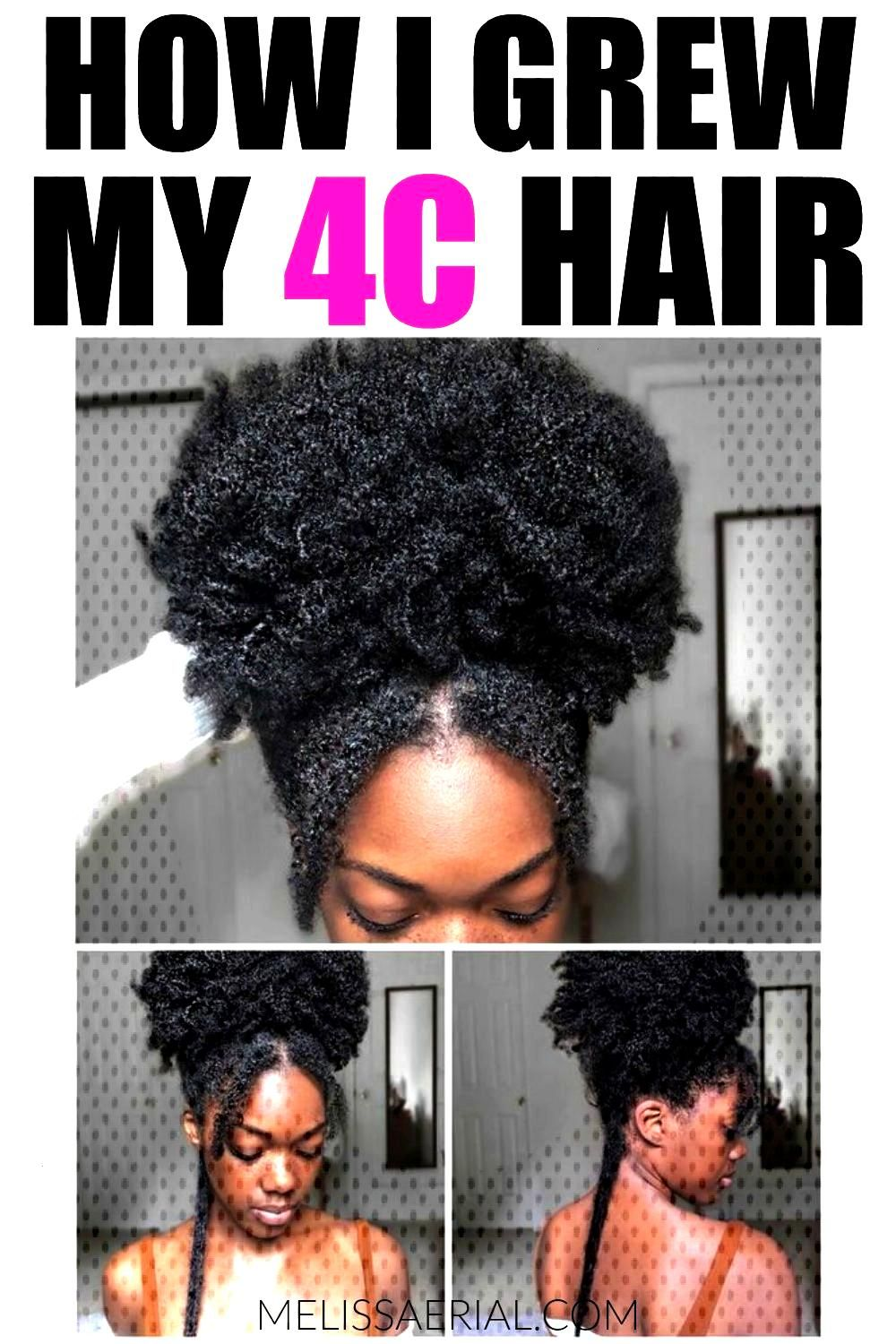 4C Natural Hair Growth Discover the best hair care treatment for your hair. Your 4C natural hair ca