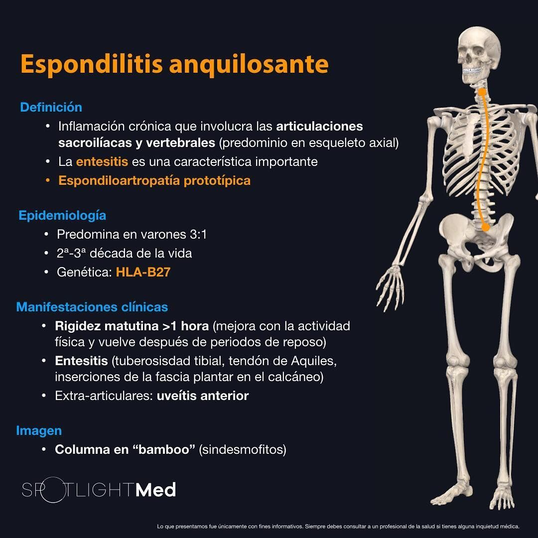 artritis reumatoide seronegativa sintomas